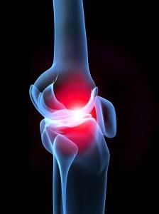 Лечение суставов, пораженных подагрой