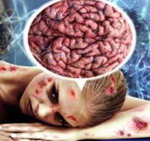 Моргеллонова болезнь